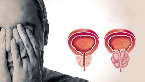 лекарство от простатита импрост